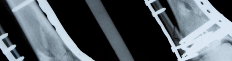 Tibia fibula lemez